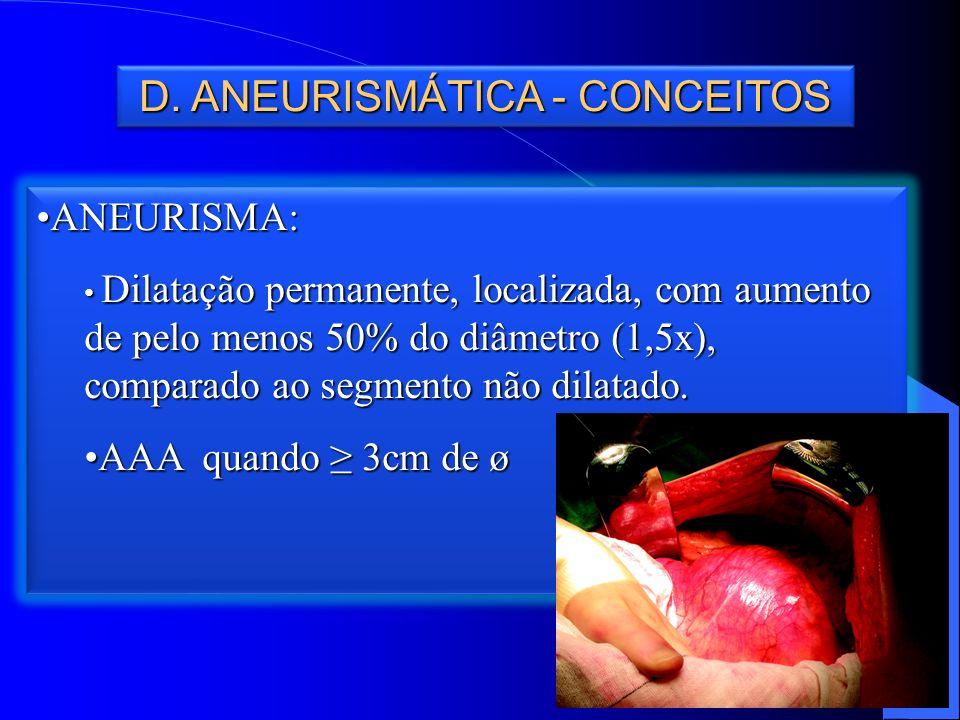 D. ANEURISMÁTICA - CONCEITOS ANEURISMA:ANEURISMA: Dilatação permanente, localizada, com aumento de pelo menos 50% do diâmetro (1,5x), comparado ao seg