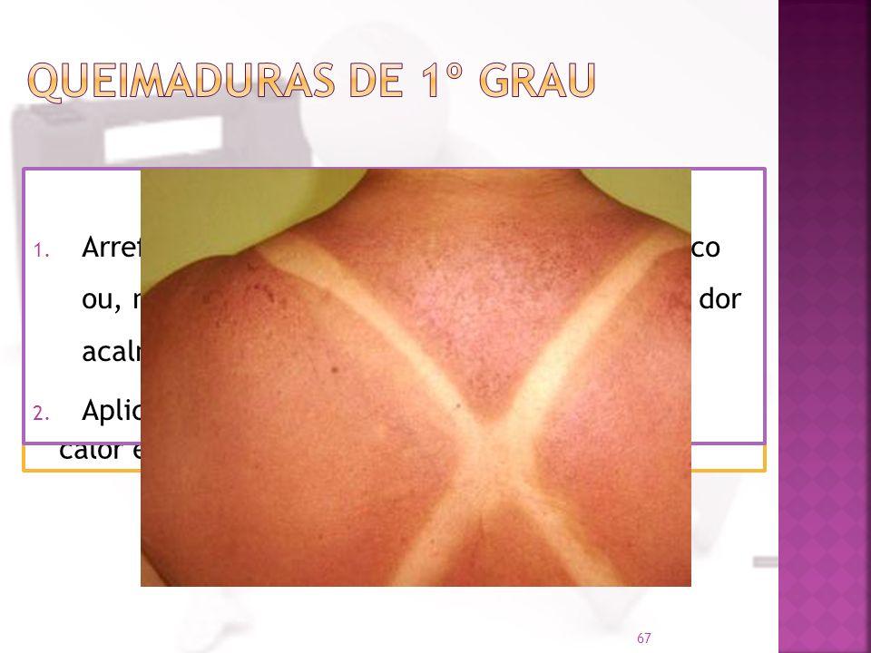 São as queimaduras menos graves; Apenas a camada externa da pele (epiderme) é afectada; A pele fica avermelhada e quente e há a sensação de calor e do