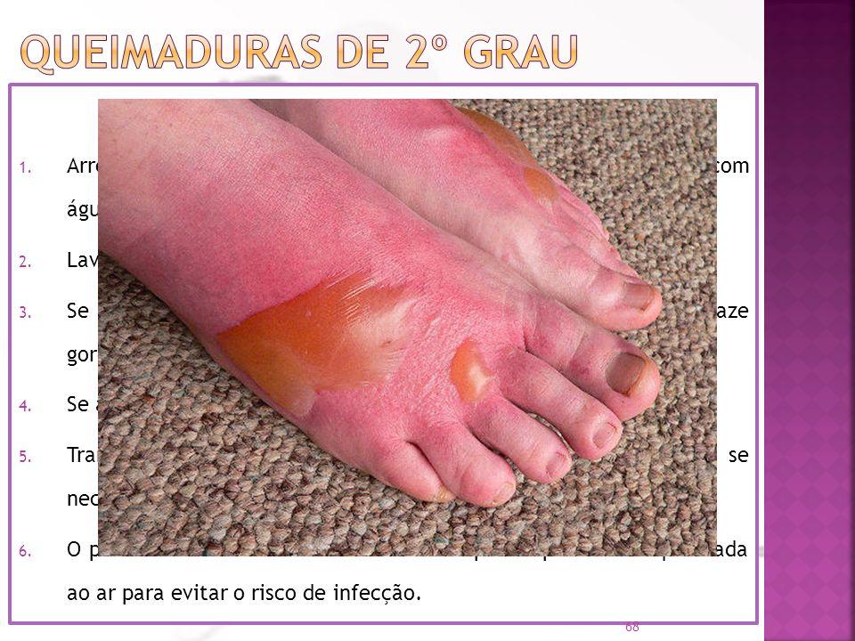 Existência de flictenas (bolhas com líquido); Atinge a derme; Dolorosa (queimadura mais grave). O que fazer 1. Arrefecer a região queimada com soro fi