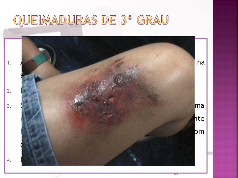 Há destruição de tecidos; Atinge tecidos mais profundos, provocando uma lesão grave, e a pele fica carbonizada (queimadura muito grave); A vítima pode