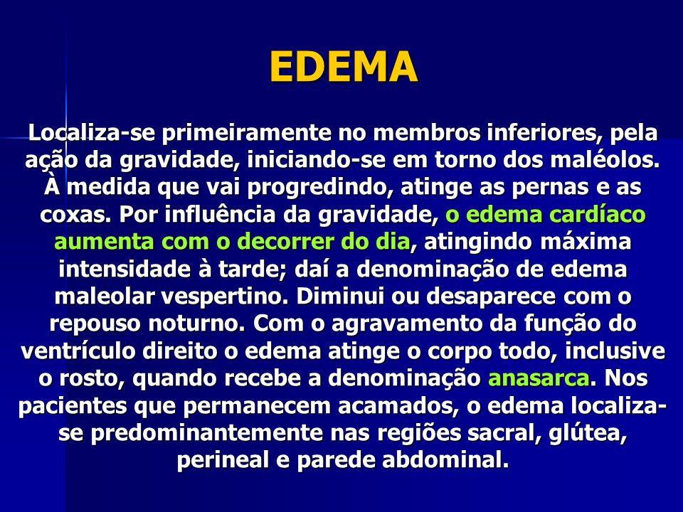 EDEMA Localiza-se primeiramente no membros inferiores, pela ação da gravidade, iniciando-se em torno dos maléolos.
