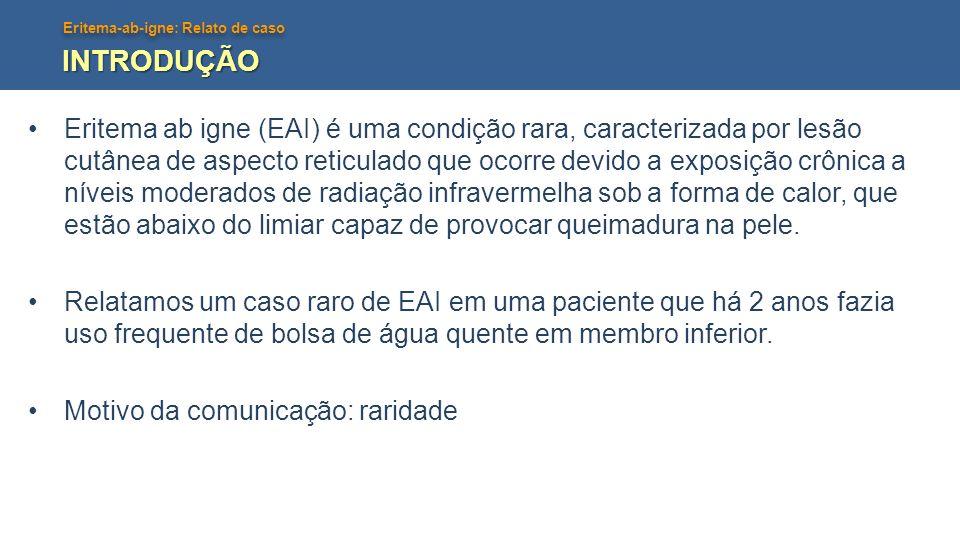 Eritema-ab-igne: Relato de caso RELATO DE CASO Paciente do sexo feminino, parda, 90 anos, relata início de lesão hipercrômica assintomática em membro inferior direito há 18 meses.