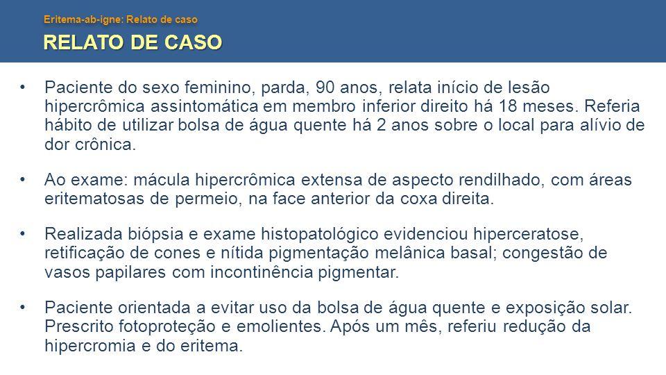 Eritema-ab-igne: Relato de caso RELATO DE CASO Paciente do sexo feminino, parda, 90 anos, relata início de lesão hipercrômica assintomática em membro