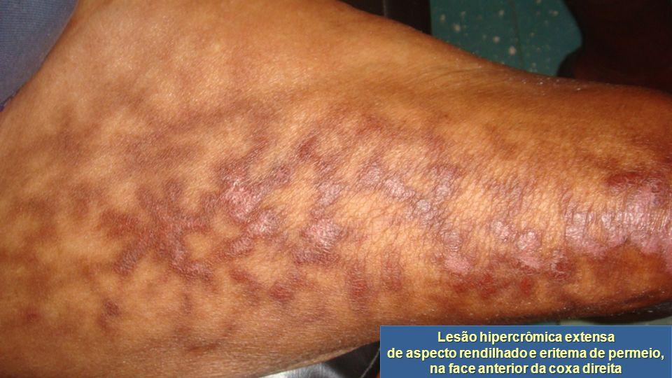 Lesão hipercrômica extensa de aspecto rendilhado e eritema de permeio, na face anterior da coxa direita Lesão hipercrômica extensa de aspecto rendilha