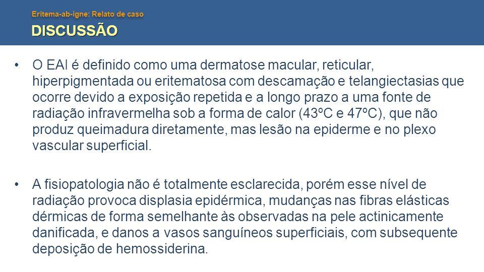 Eritema-ab-igne: Relato de caso DISCUSSÃO Durante a fase aguda, ocorre eritema evanescente; posteriormente, há eritema mais pronunciado e persistente, hiperpigmentação reticulada e atrofia epidérmica.
