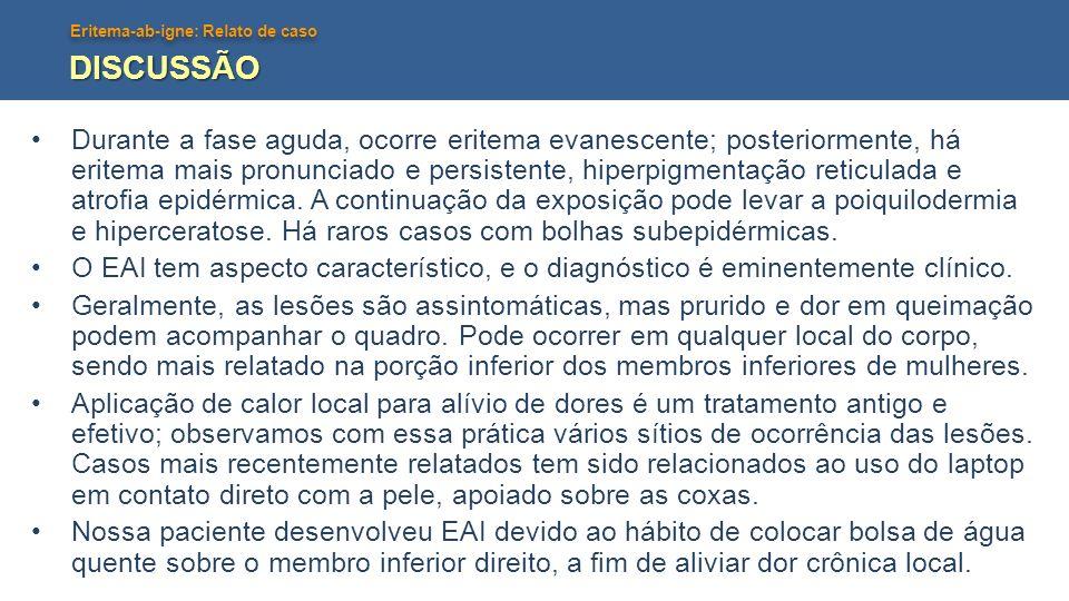 Eritema-ab-igne: Relato de caso DISCUSSÃO Pacientes com EAI apresentam risco de desenvolver doenças malignas cutâneas após um período longo de latência que pode ser de décadas.