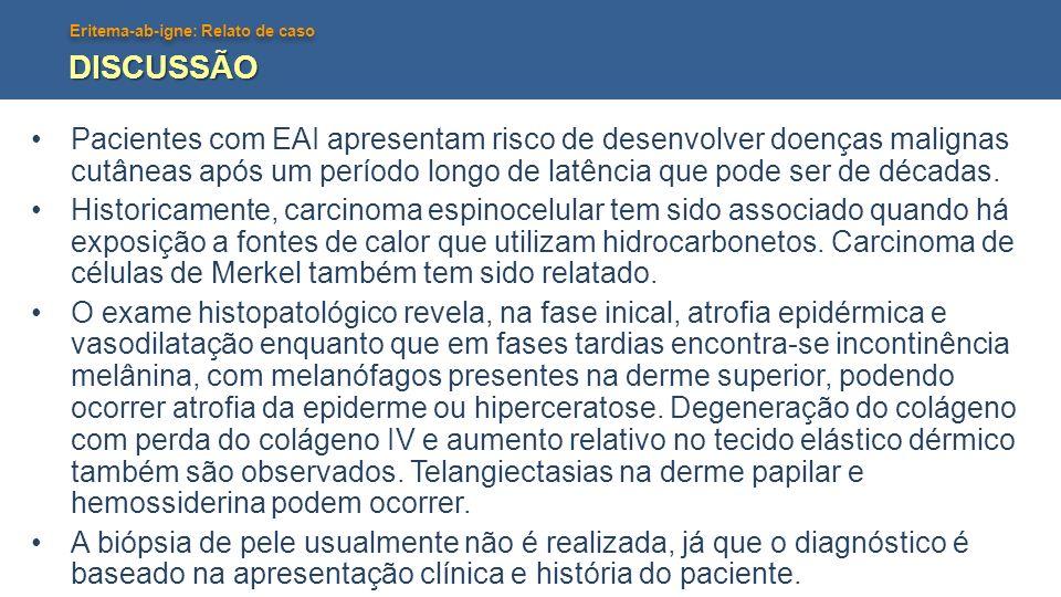 Eritema-ab-igne: Relato de caso DISCUSSÃO Pacientes com EAI apresentam risco de desenvolver doenças malignas cutâneas após um período longo de latênci