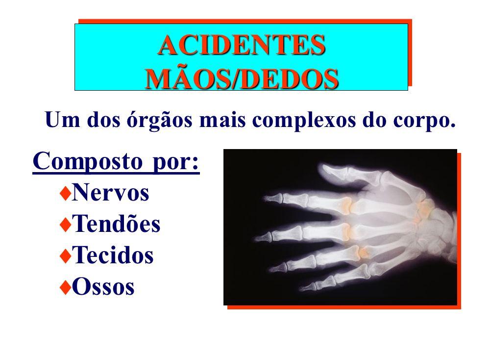 ACIDENTES MÃOS/DEDOS Um dos órgãos mais complexos do corpo. Composto por: Nervos Tendões Tecidos Ossos