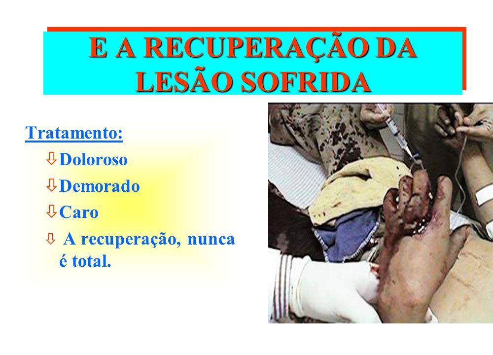 E A RECUPERAÇÃO DA LESÃO SOFRIDA Tratamento: òDoloroso òDemorado òCaro ò A recuperação, nunca é total.