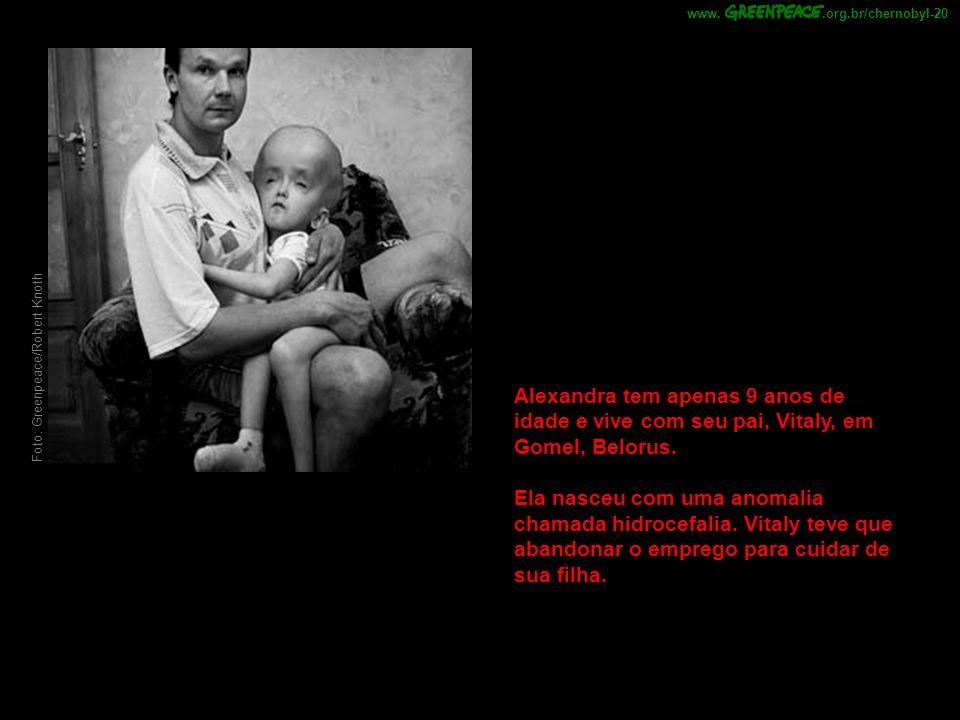 Foto: Greenpeace/Robert Knoth Alexandra tem apenas 9 anos de idade e vive com seu pai, Vitaly, em Gomel, Belorus. Ela nasceu com uma anomalia chamada