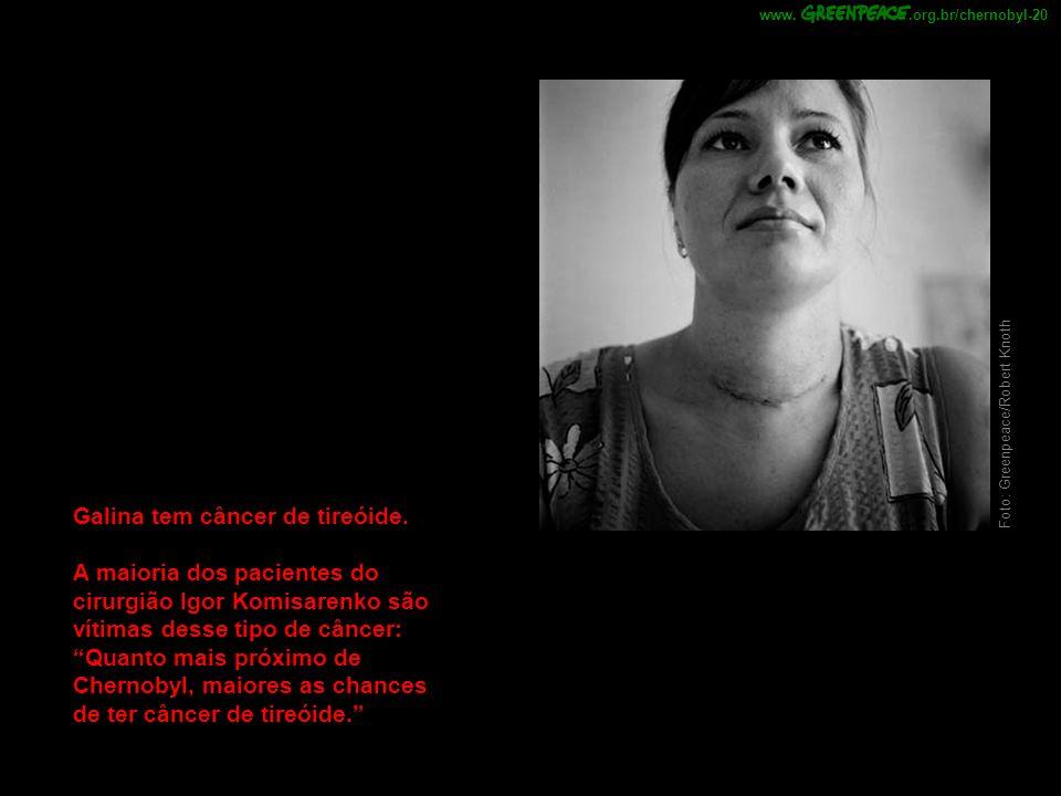 Foto: Greenpeace/Robert Knoth Galina tem câncer de tireóide. A maioria dos pacientes do cirurgião Igor Komisarenko são vítimas desse tipo de câncer: Q
