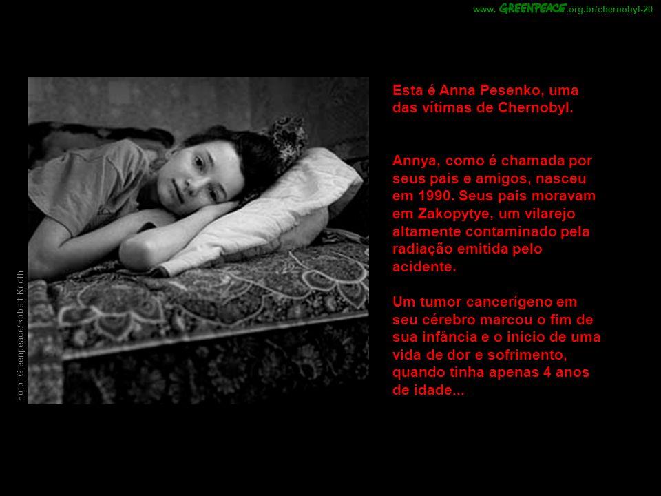 Foto: Greenpeace/Robert Knoth Esta é Anna Pesenko, uma das vítimas de Chernobyl. Annya, como é chamada por seus pais e amigos, nasceu em 1990. Seus pa