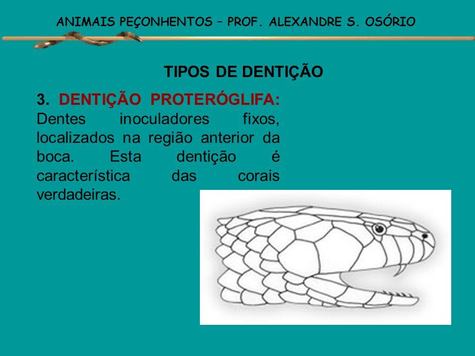 ANIMAIS PEÇONHENTOS – PROF. ALEXANDRE S. OSÓRIO TIPOS DE DENTIÇÃO 2.DENTIÇÃO OPISTÓGLIFA: Dentes inoculadores fixos, contendo um sulco por onde escorr