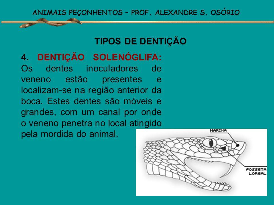 ANIMAIS PEÇONHENTOS – PROF. ALEXANDRE S. OSÓRIO TIPOS DE DENTIÇÃO 3. DENTIÇÃO PROTERÓGLIFA: Dentes inoculadores fixos, localizados na região anterior