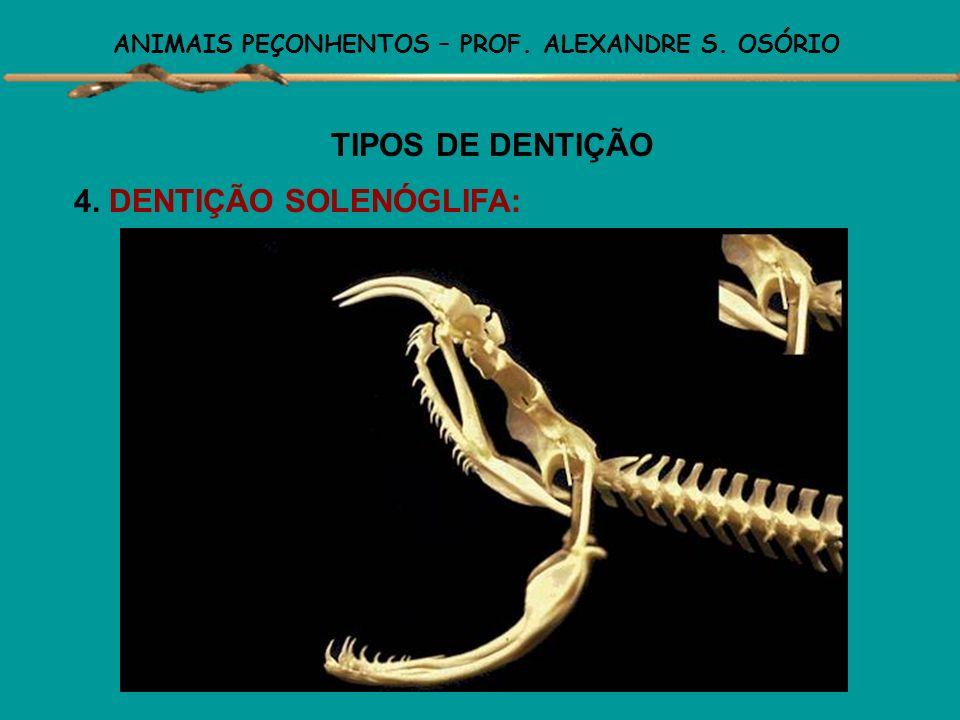 ANIMAIS PEÇONHENTOS – PROF. ALEXANDRE S. OSÓRIO TIPOS DE DENTIÇÃO 4. DENTIÇÃO SOLENÓGLIFA: Os dentes inoculadores de veneno estão presentes e localiza