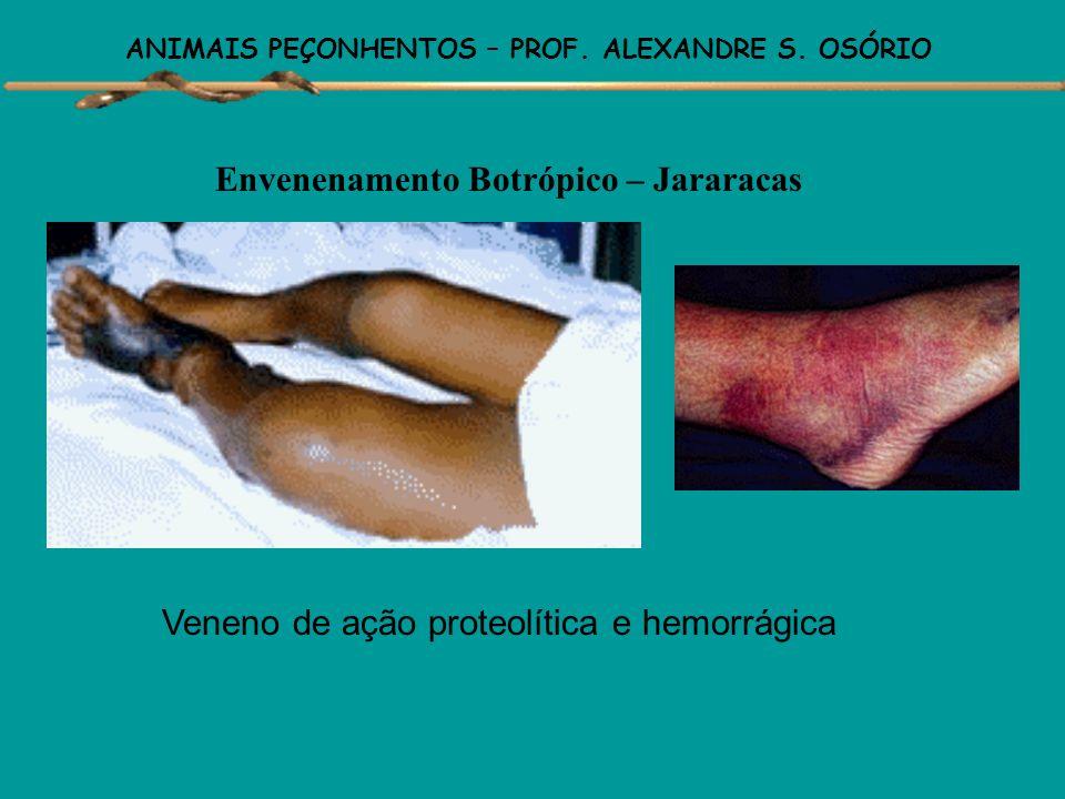 ANIMAIS PEÇONHENTOS – PROF. ALEXANDRE S. OSÓRIO Envenenamento Botrópico – Jararacas ( 90% dos acidentes) Manifestações locais: precoce (até 3 horas ap