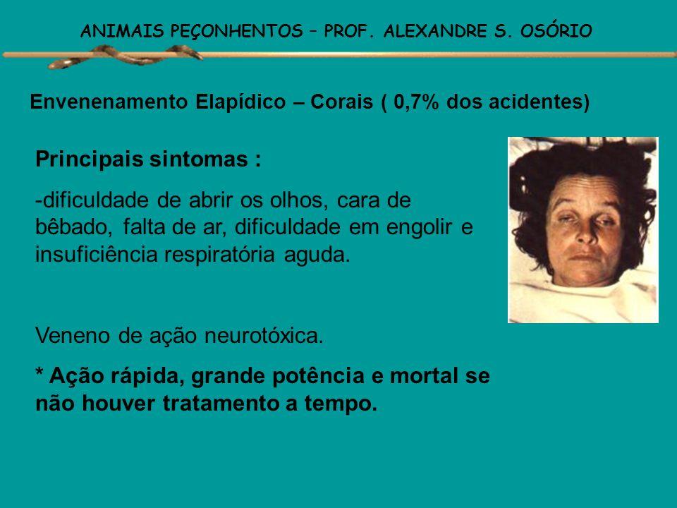 ANIMAIS PEÇONHENTOS – PROF. ALEXANDRE S. OSÓRIO Envenenamento Laquético – Surucucus ( 2,9% dos acidentes) Envenenamento com reações semelhantes ao de