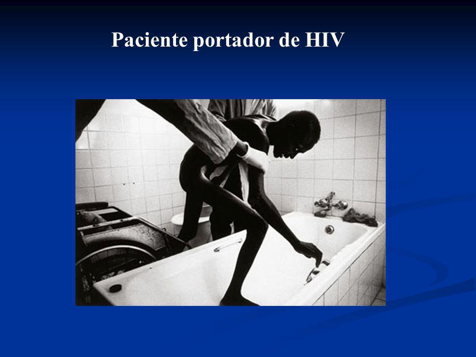 Paciente portador de HIV e Tuberculose