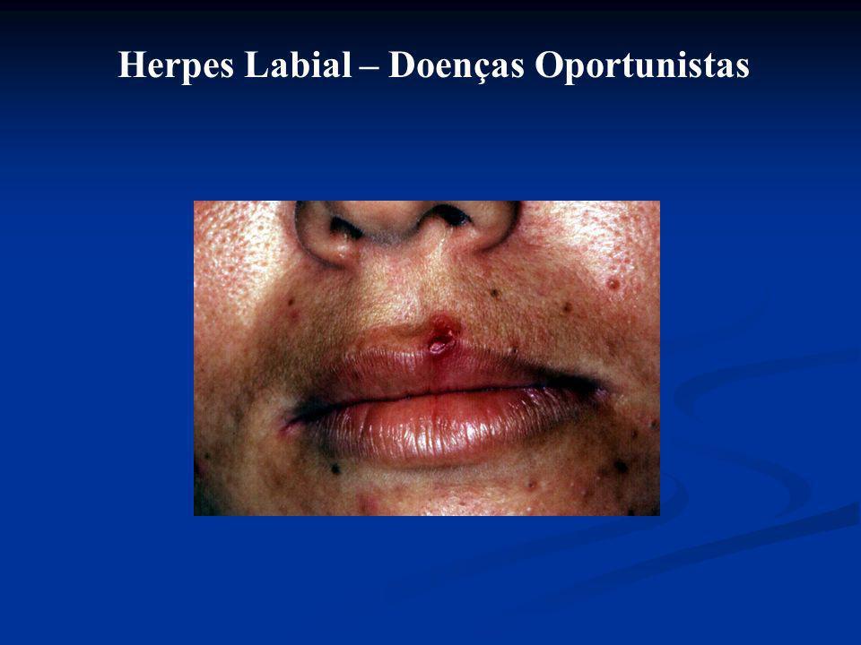 Herpes Labial – Doenças Oportunistas