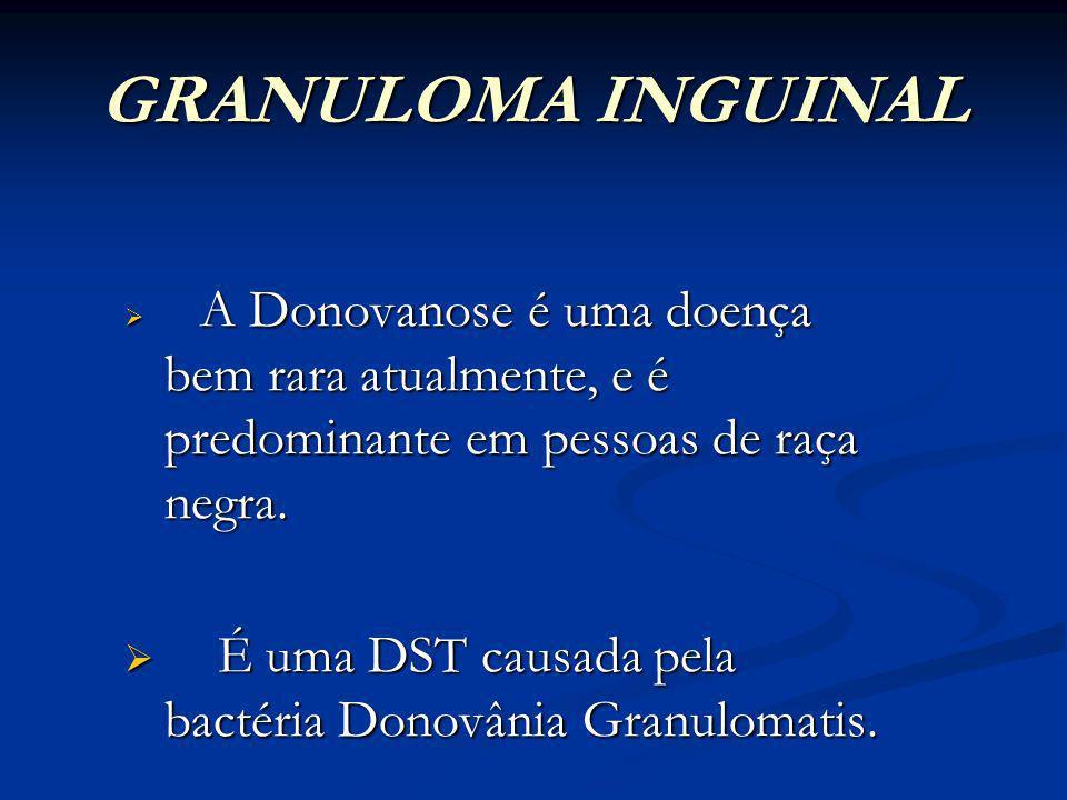 GRANULOMA INGUINAL Também chamada Donovanose ou Granuloma Venéreo