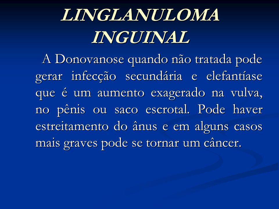 GLANULOMA INGUINAL DIAGNÓSTICO O diagnóstico é feito pela história e aspecto clínico da lesão podendo usar recursos laboratoriais através do material