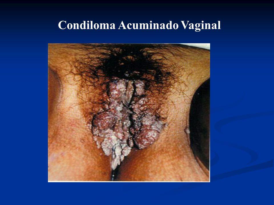 É a formação de papilomas que aparecem em regiões úmidas, particularmente nos genitais. O agente causador é um vírus do grupo HPV. A transmissão se fa