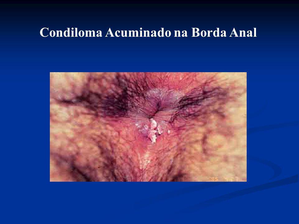 Condiloma Acuminado no Pênis