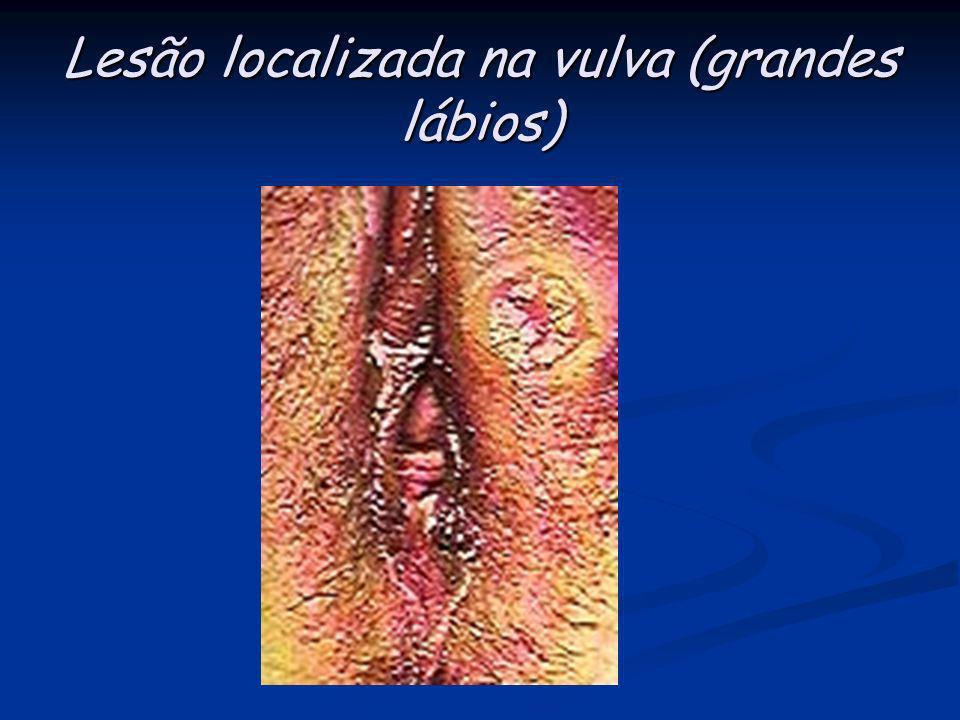 Úlcera em pênis: lesão única, bem definida; fundo limpo; bordas elevadas. Geralmente indolor.