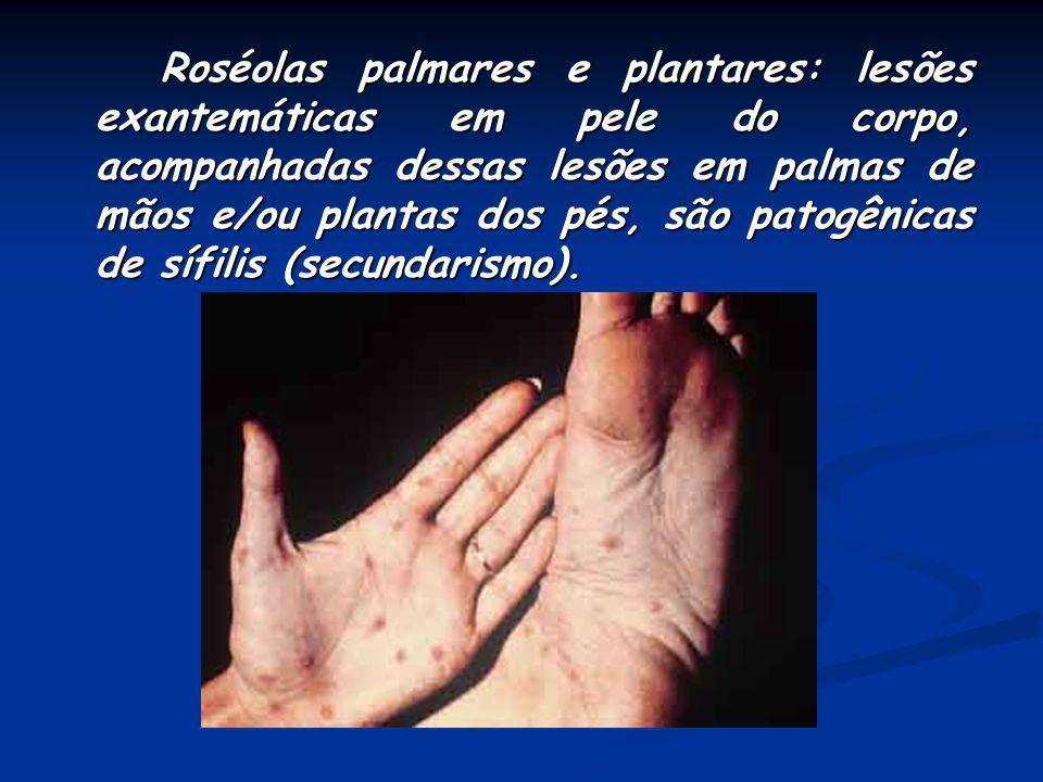 Essas lesões comprometem as palmas da mãos e as pontas dos pés, geralmente acompanhadas de placas mucosas, alopecia em clareira e linfadenopatia gener