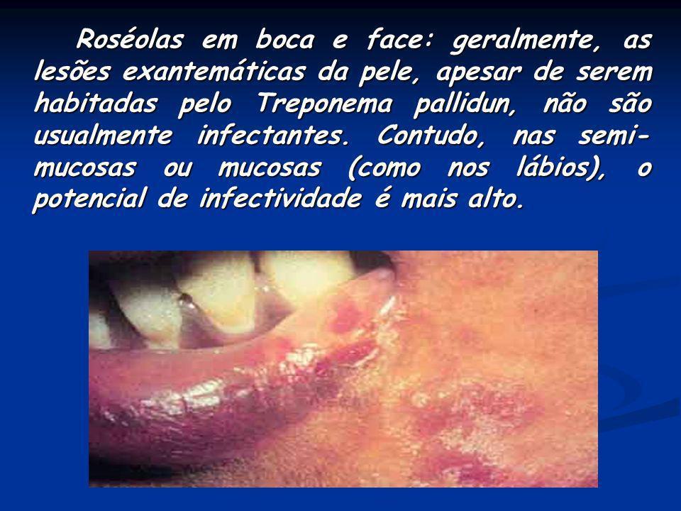 Lesões papulosas em pênis (Sifílides papulosas): essas lesões são também denominadas de condiloma plano (não confundir com o condiloma acuminado). São