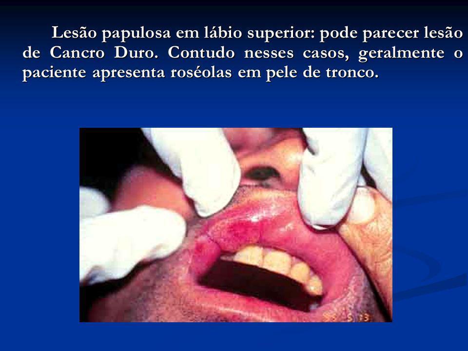 Roséolas em boca e face: geralmente, as lesões exantemáticas da pele, apesar de serem habitadas pelo Treponema pallidun, não são usualmente infectante