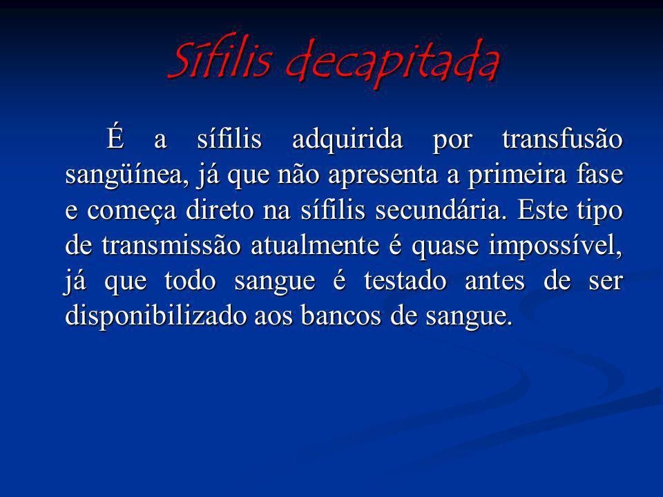 Goma sifilítica: lesões nodulares que sofrem processo de degeneração. Significam reação de hipersensibilidade ao Treponema, não sendo infectantes, por