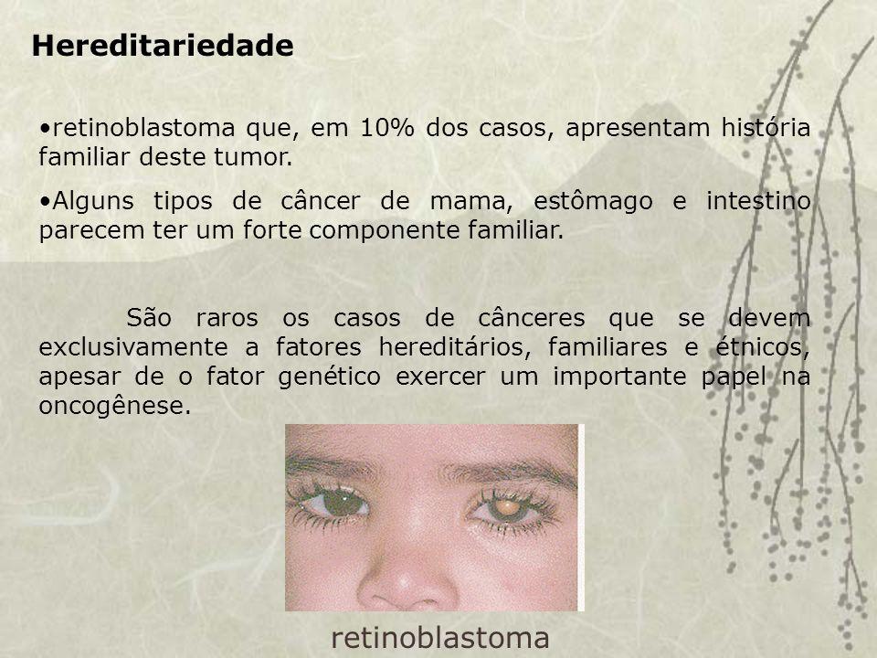 Hereditariedade retinoblastoma que, em 10% dos casos, apresentam história familiar deste tumor.