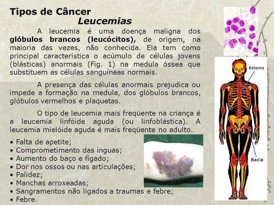 Tipos de Câncer Leucemias A leucemia é uma doença maligna dos glóbulos brancos (leucócitos), de origem, na maioria das vezes, não conhecida.