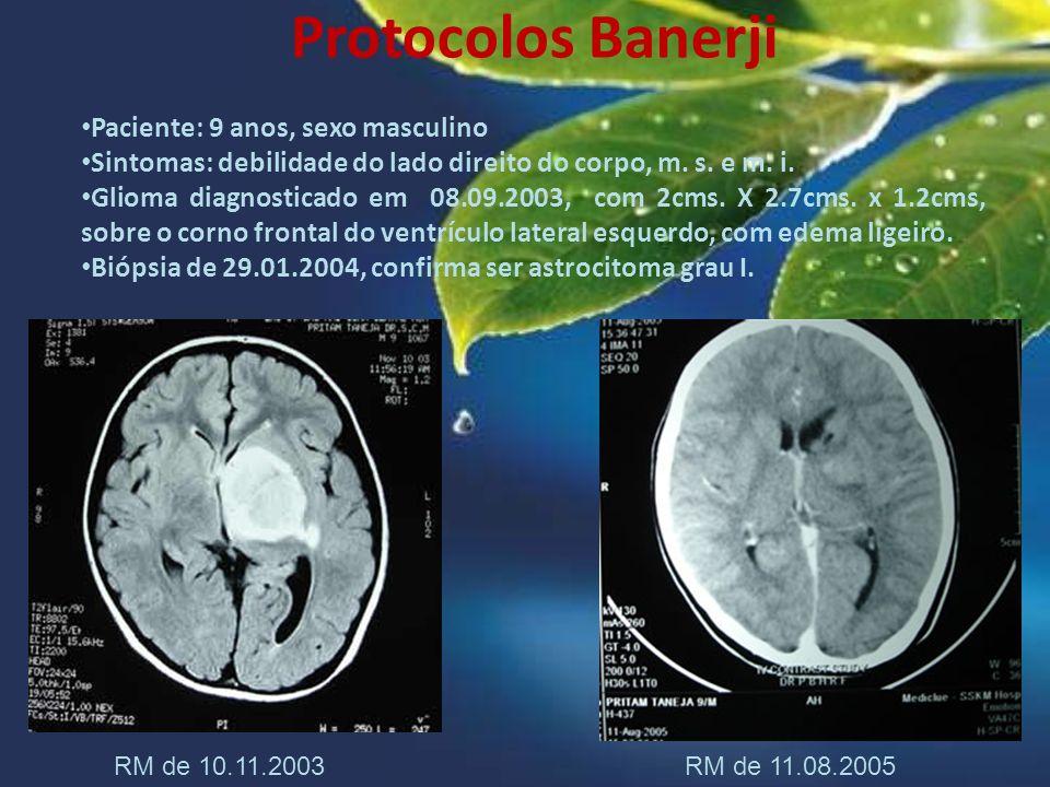 Protocolos Banerji Paciente: 9 anos, sexo masculino Sintomas: debilidade do lado direito do corpo, m. s. e m. i. Glioma diagnosticado em 08.09.2003, c