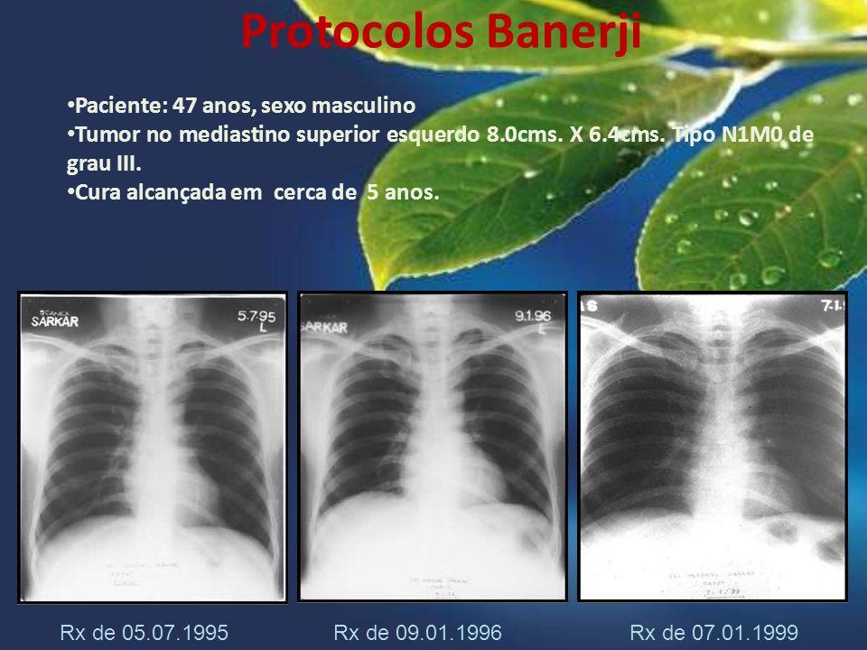 Protocolos Banerji Paciente: 47 anos, sexo masculino Tumor no mediastino superior esquerdo 8.0cms. X 6.4cms. Tipo N1M0 de grau III. Cura alcançada em
