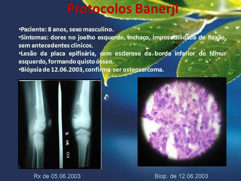 Protocolos Banerji Paciente: 8 anos, sexo masculino. Sintomas: dores no joelho esquerdo, inchaço, impossibilidade de flexão, sem antecedentes clínicos