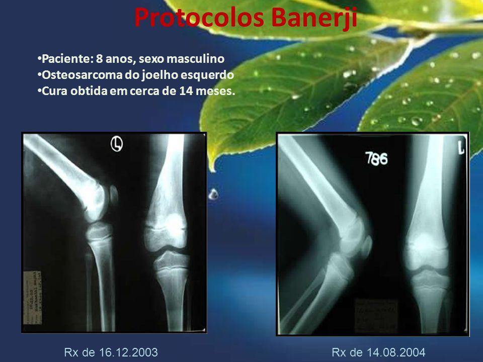 Protocolos Banerji Paciente: 8 anos, sexo masculino Osteosarcoma do joelho esquerdo Cura obtida em cerca de 14 meses. Rx de 16.12.2003 Rx de 14.08.200