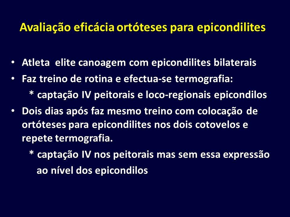 Avaliação eficácia ortóteses para epicondilites Atleta elite canoagem com epicondilites bilaterais Atleta elite canoagem com epicondilites bilaterais