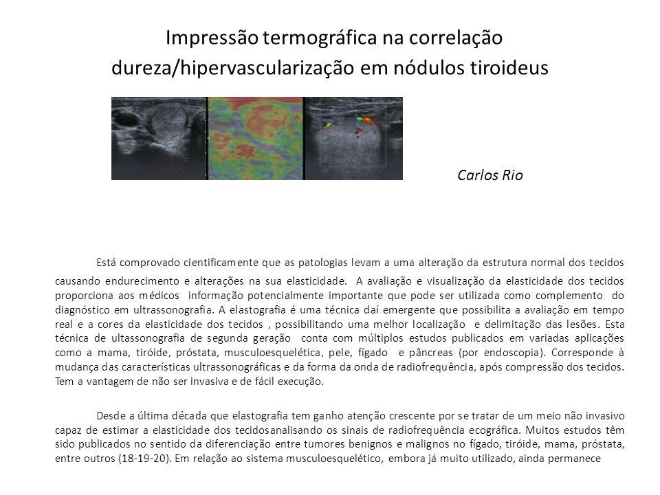 Impressão termográfica na correlação dureza/hipervascularização em nódulos tiroideus Carlos Rio Está comprovado cientificamente que as patologias leva