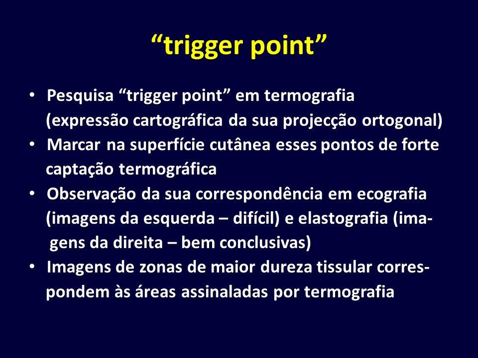 trigger point Pesquisa trigger point em termografia Pesquisa trigger point em termografia (expressão cartográfica da sua projecção ortogonal) (express