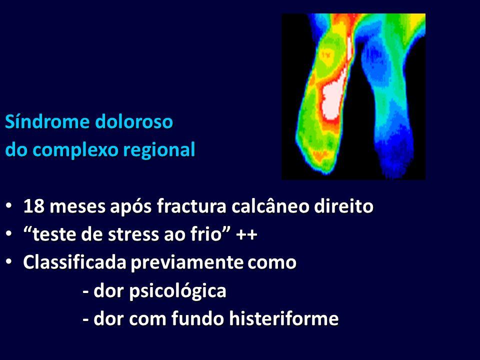Síndrome doloroso do complexo regional 18 meses após fractura calcâneo direito 18 meses após fractura calcâneo direito teste de stress ao frio ++ test