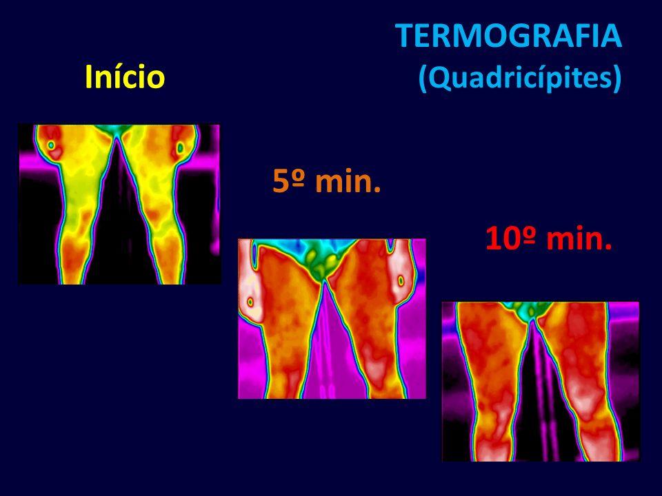TERMOGRAFIA (Quadricípites) 5º min. 10º min. Início