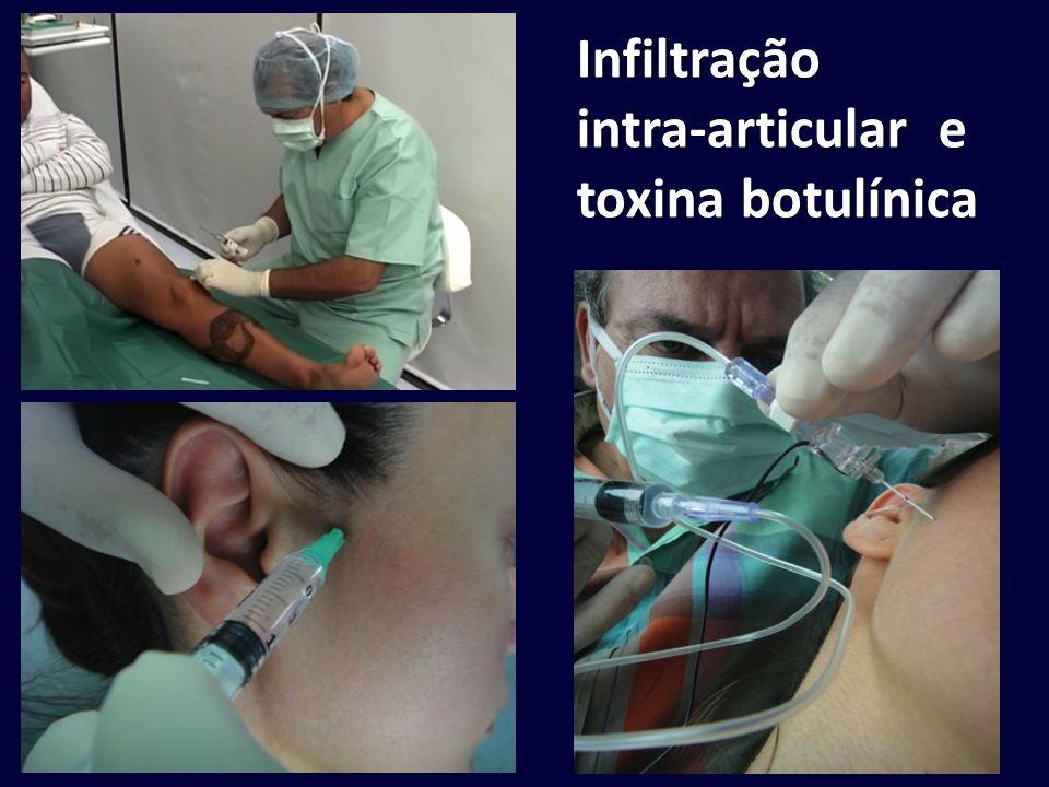 Infiltração intra-articular e toxina botulínica