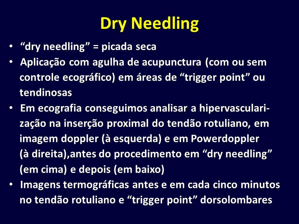 Dry Needling dry needling = picada seca dry needling = picada seca Aplicação com agulha de acupunctura (com ou sem Aplicação com agulha de acupunctura