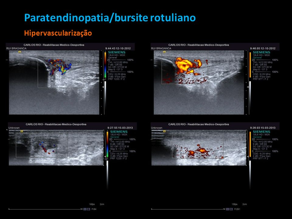 Paratendinopatia/bursite rotuliano Hipervascularização Paratendinopatia/bursite rotuliano Hipervascularização