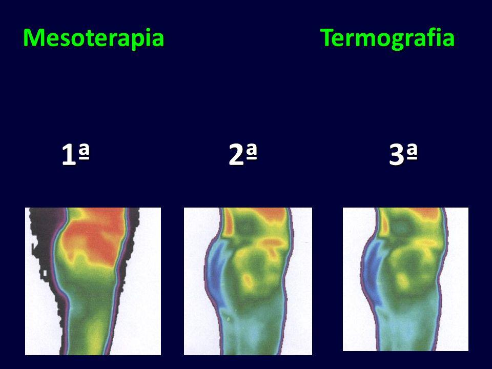 Mesoterapia Termografia 1ª 2ª 3ª