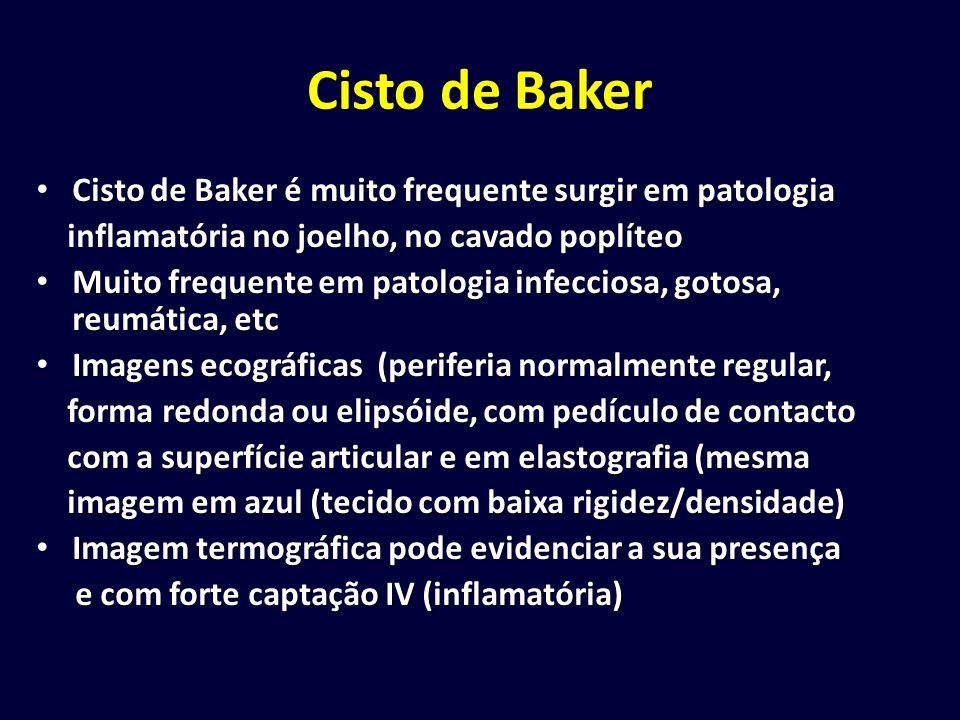 Cisto de Baker Cisto de Baker é muito frequente surgir em patologia Cisto de Baker é muito frequente surgir em patologia inflamatória no joelho, no ca