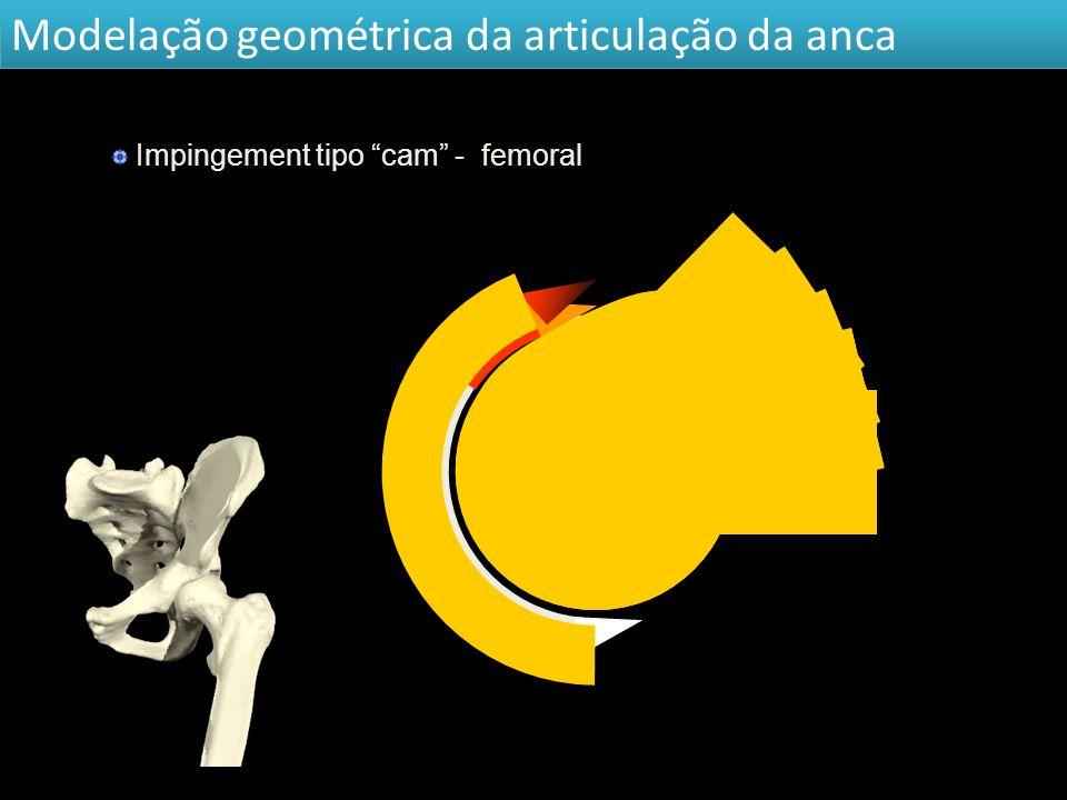 Modelação geométrica da articulação da anca Impingement tipo cam - femoral