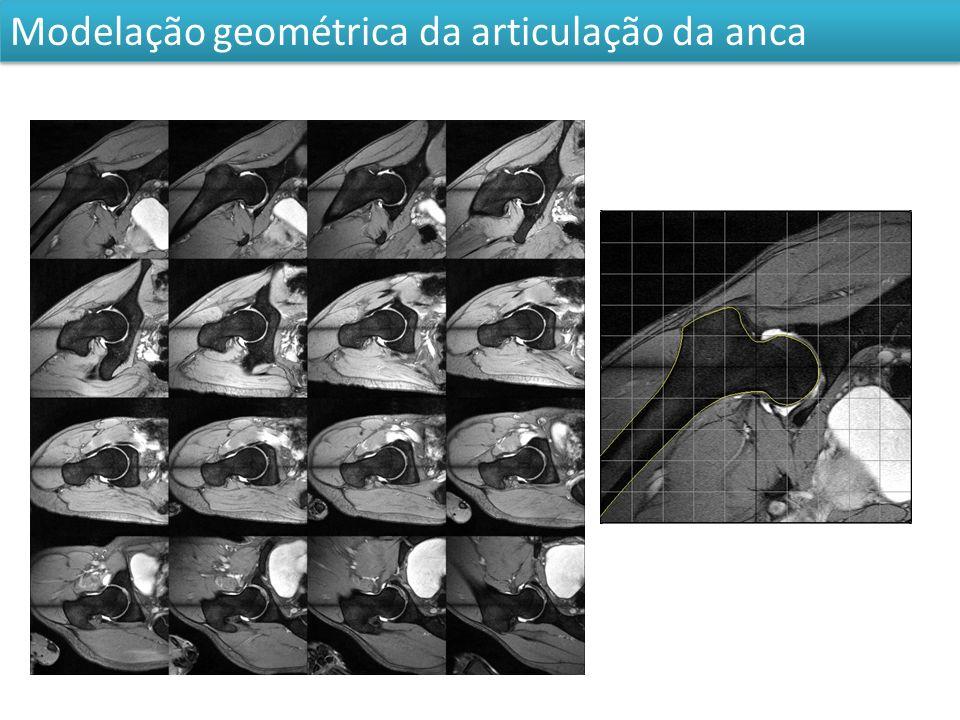 Modelação geométrica da articulação da anca